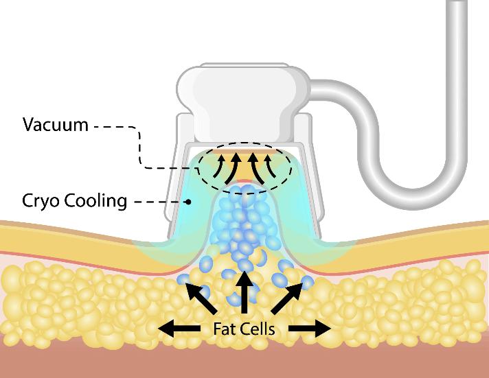 Fettgewebe während der Kryolipolyse Behandlung