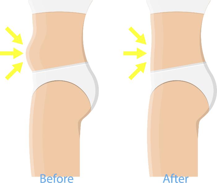 Vorher - Nachher Kryolipolyse Behandlung